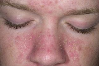 Высыпание дерматита на лице.