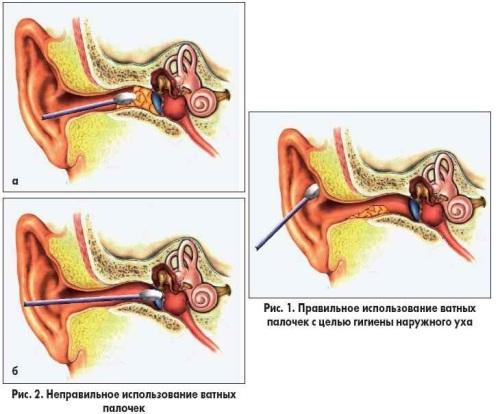 Причины и правильная чистка уха ватными палочками.