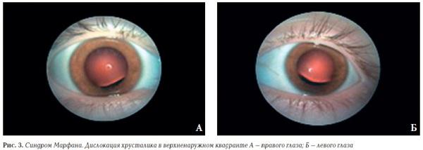 Изменения в работе глаз при заболевании.