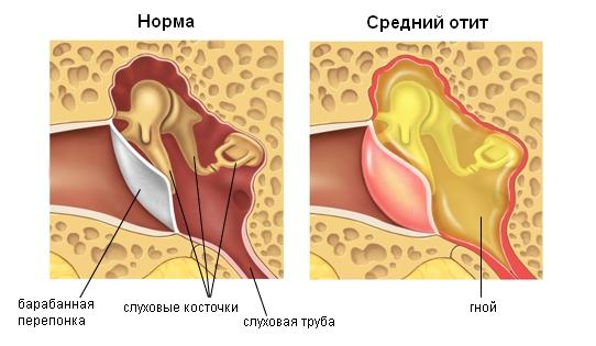 Причины проявления и особенности течения заболевания.