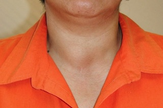 Развитие и возможные осложнение заба щитовидной железы.