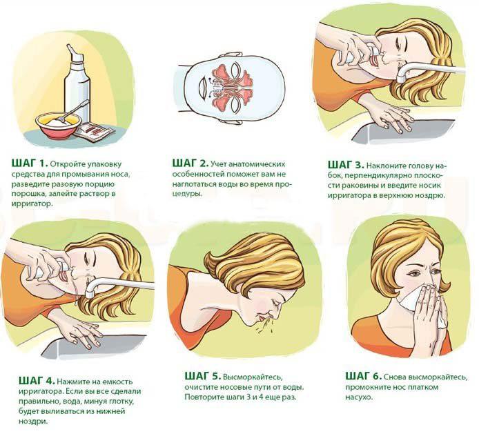 Правила промывания носа при гайморите.
