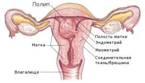 Что такое полип эндометрия?