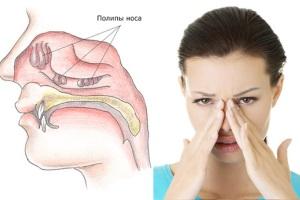 Причины и симптомы полипов в носу.