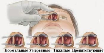 Признаки полипов в носу и их лечение