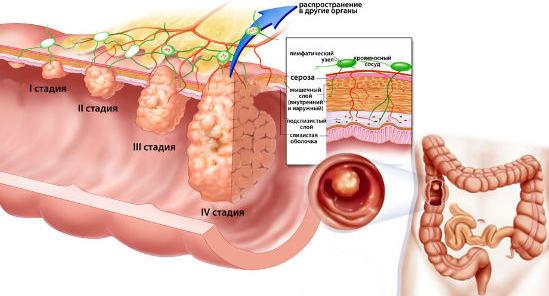 Стадии развития полипа в кишечнике