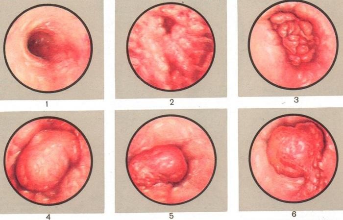 Опасность проявления полипа жёлчного пузыря.