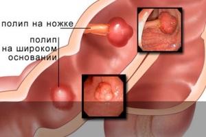 Причины появления полипов в желудке.