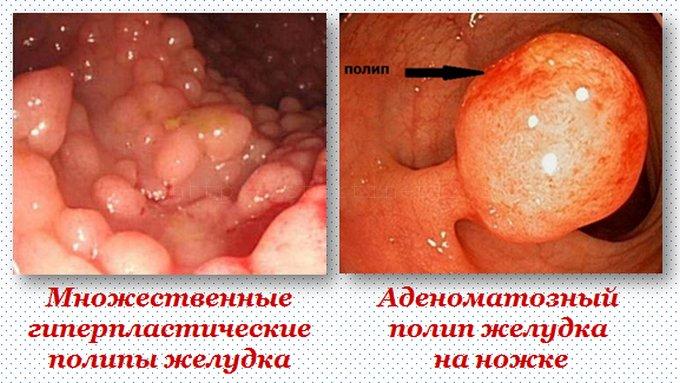 Проявления полипов в желудке.
