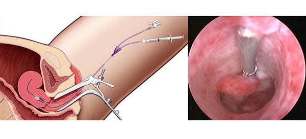 Удаление полипов эндометрии методом гистероскопии.