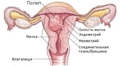 Что такое железисто фиброзный полип эндометрия?